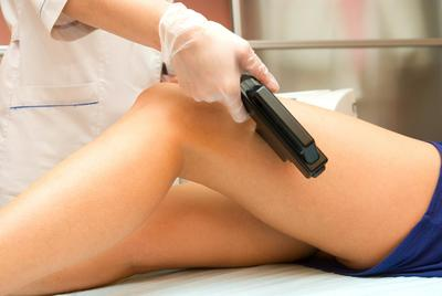 Clearfield Laser Hair Removal