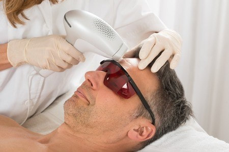 Laser Eyebrow Hair Removal
