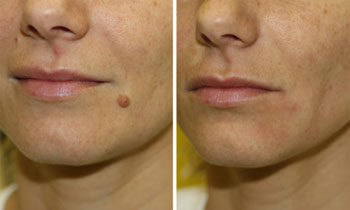 Skin Tag Removal Clearfield